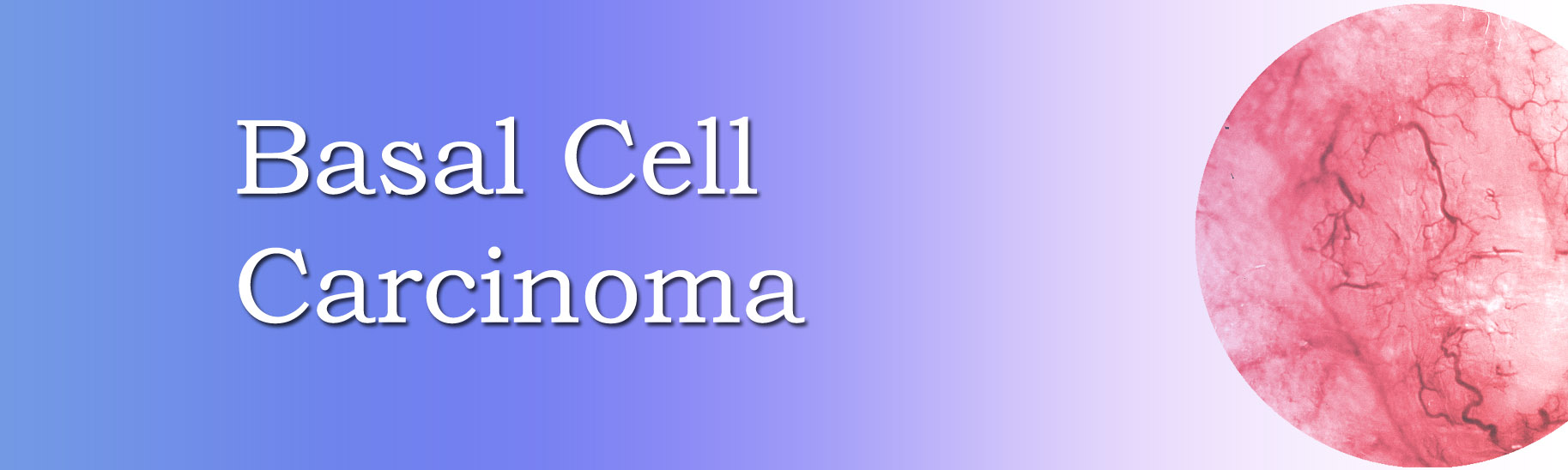 Picture for Basal cell carcinoma information